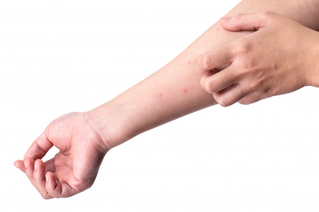 Allergic Mosquito Bites